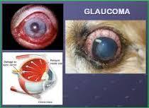 Penyembuhan Glaukoma Secara Tradisional